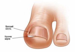 Как лечить скручивание ногтей на ногах