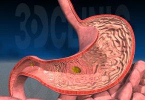 Щитовидка гиперфункция народные средства лечения
