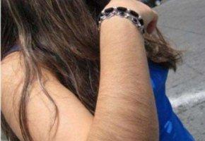 Как удалить волосы с рук