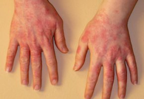 Крапивница на руках: лечение и профилактика