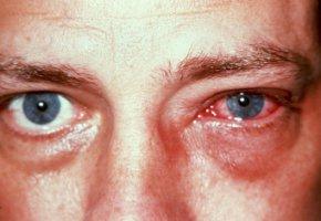 глаз герпес фото
