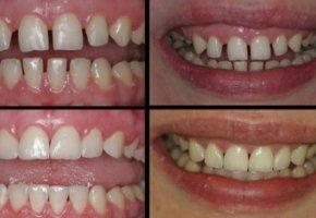 Дырка между зубов что это