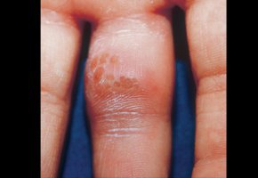 Как выглядит кандидозный дерматит